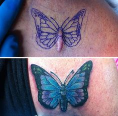 50 amazing scar cover-up tattoos Butterfly Tattoo Cover Up, Butterfly Tattoo Meaning, Butterfly Tattoos For Women, Butterfly Tattoo Designs, Tattoo Over Scar, Scars Tattoo Cover Up, Scar Cover Up, Faded Tattoo, Tribal Tattoos
