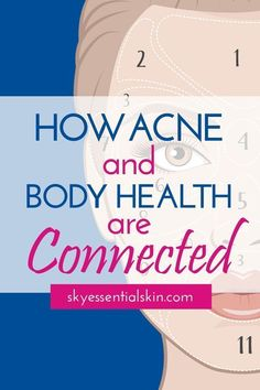 How Acne and Body Health Are Connected - Did you know areas of your face are connected to parts of your body. By analyzing which parts of your face are most prone to acne breakouts, face mapping experts can look for clues into the state of your internal health. #acne #bodyhealth #beinghealthy #skincare