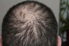 Rosemary, Lemon, And Vitamin E In Your Shampoo Can Stop Hair Loss