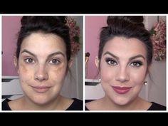 Full Coverage Makeup for Melasma and Discoloration Camouflage Makeup, Makeup Tips, Beauty Makeup, Makeup Tutorials, Eyeshadow Tutorials, Full Coverage Makeup, Dark Spots On Face, Best Concealer, Makeup Ideas