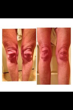 Leg results! 69 days using Nerium!  Use for aged and loose skin.  30 day money back guarantee!  Order today at: www.wrinkleresults.merium.com