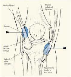 Yum Run: Pes Anserine Bursitis - the pain in my knee