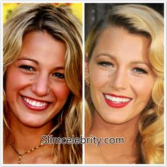 #BlakeLively Nose Job before and after photos leaked! Find more shocking photos here! http://slimcelebrity.com/plastic-surgery/blake-lively-nose-job/
