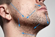 Wet Shaving. To prevent ingrown hairs is to shave in the DIRECTION of hair growth as illustrated in this photo ● Give yourself a few days without shaving to properly inspect the direction of your hair growth – inspect closely and try to remember where the direction changes. In order to reduce razor burn and ingrown hairs, it's always best to shave in the direction of the hair growth. While this may not provide the closest shave, it will be far more comfortable and irritation free.