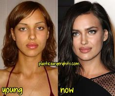 irina shayk before and after the lips ✿⊱╮ - Plastic Surgery Plastic Surgery Facts, Botox Brow Lift, Face Transformation, Celebs Without Makeup, Celebrities Before And After, Celebrity Plastic Surgery, Lip Injections, Lip Fillers, Rhinoplasty