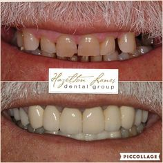 67 year old male looking for a functional and aesthetic improvement for his smile. Treatment involved a combination of Crowns Bridges and Dental Implants. Total treatment took approximately 6 months. The patient was thrilled with the results! #hazeltonlanesdental #hazeltonlanes #yorkville #yorkvilledentaloffice #torontodentist #yorkvilledentist #estheticdentistry #toronto #416 #gta #thesix #equinox #dentistry #cosmeticdentist #dds #cosmeticdentistry #smilemakeover #dentalimplants…