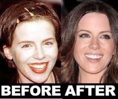 Celebrity Kate Beckinsale Plastic Surgery Before After - http://www.surgeryafter.com/celebrity-kate-beckinsale-plastic-surgery-before-after/?Pinterest