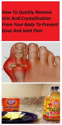 HOW TO QUICKLY REMOVE URIC ACID CRYSTALLIZATION FROM YOUR BODY TO PREVENT GOUT AND JOINT PAIN - Global Health ABC