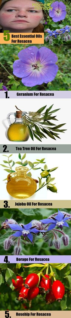 The 5 Best Essential Oils For Rosacea | http://www.searchhomeremedy.com/the-5-best-essential-oils-for-rosacea/