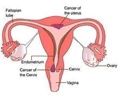Cervical Cancer Study Brings Hope for Patients