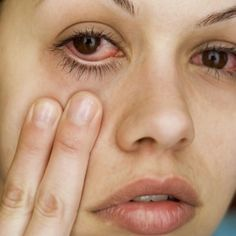 Natural Remedies For Allergies People with allergies also can develop red, swollen, and itchy eyes when exposed to their allergic triggers. - Eye allergies are common and treatable. WebMD tells you about triggers, diagnosis, and treatments. Holistic Remedies, Natural Home Remedies, Health Remedies, Homeopathic Remedies, Eye Allergy Relief, Allergy Eyes, Home Health, Health Tips, Health Care