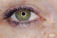 #green eye  #central heterchromia  #freckles  #green eye ginger