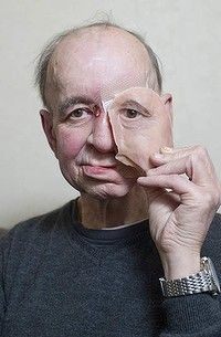 Man gets 3-D printed face!  Eric Moger has a partial prosthetic face after suffering from face cancer.