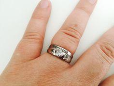 A Melita le encanta su particular anillo de compromiso.   Este hombre convirtió el hueso de su pierna amputada en el anillo de compromiso de su novia