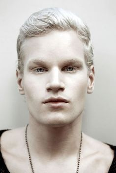 Royalty-free Image: Portrait of albino man. More sites should put watermarks across their photos. This way people can save them without worrying about losing the source. Modelo Albino, Black Dagger Brotherhood, Albino Men, Beautiful Men, Beautiful People, Interesting Faces, Male Face, Male Beauty, People Around The World