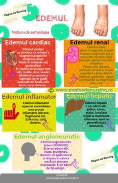 varicoză de homeopatie edem)