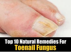 Top 10 Natural Remedies For Toenail Fungus - http://www.naturallivingideas.com/top-10-natural-remedies-for-toenail-fungus/