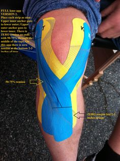 Full knee Taping - considering the potential for knee injuries I have a feeling we should all be doing this.
