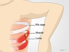 How to Check Lymph Nodes: 10 Steps (with Pictures) - wikiHow