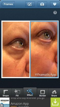 Another great before and after photo from Instantly Ageless. This is a sister-in-law of one of our business partners. Sister In Law, Sisters, Business, Photos, Pictures, Store, Business Illustration