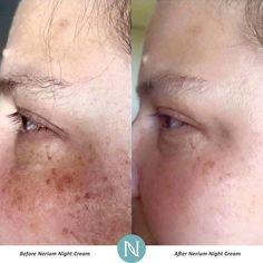 Sun damage and sun spots = improved with Nerium Night Cream