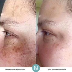 Sun damage and sun spots = improved with Nerium Night Cream