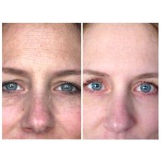 Rodan + Fields Reverse regimen 60 day results (no makeup other than mascara in both pictures)