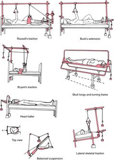 Traction types . Provide counter traction for Buck's traction (raise foot of the bed).