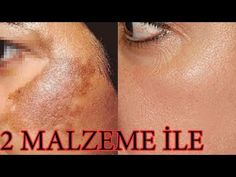 15 minutes also the anti-blemish firming wrinkle-opening natural mask recipe i gave it you can do beauty care and skin care Blemish Remover, Wrinkle Remover, Beauty Care, Beauty Hacks, Hair Beauty, Haut Routine, Pimples On Face, Homemade Skin Care, Facial Care