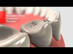 Learn what to expect during common dental procedures like cavity fillings, crowns and root canals. (via: colgate)