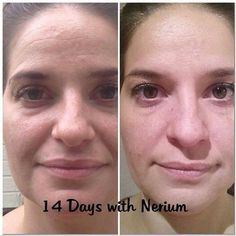 Nerium AD is clinically tested to help with fine lines, discoloration, enlarged pours & discoloration 30% in 30 days. Contact me today to get yours!!! Shelbiiniicole@aol.com www.shelbisanders.arealbreakthrough.com