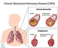 COPD :Symptoms,Causes,Types,Prevention & Treatment