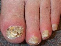 Onychomycosis may affect one or more toenails and/or fingernails and most often involves the great toenail or the little toenail. It can present in one or several different patterns:        Lateral onychomycosis. A white or yellow opaque streak appears at one side of the nail.      Subungual hyperkeratosis. Scaling occurs under the nail.      Distal onycholysis. The end of the nail lifts up. The free edge often crumbles.      Superficial white onychomycosis. Flaky white patches and pits…