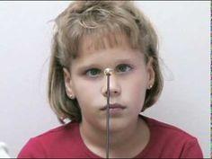 Assessing Eye Movements | Vision OT