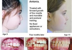 Pretty in Primal: Epigenetic Orthodontics: Building Better Bites, Faces and Health?