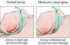 Various Treatments For Sleep Apnea