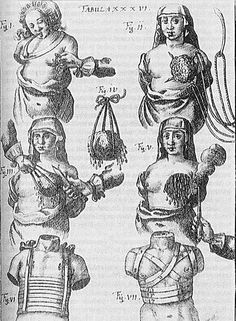 Mastectomy procedures depicted in a 1666 text by Johann Schultes (1595–1645).