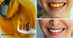 Natural homemade toothpaste that can heal cavities, gum disease, and whiten teeth! Tooth staining or discoloration is a common cosmetic . Teeth Whitening Remedies, Natural Teeth Whitening, Gum Disease Treatment, Homemade Toothpaste, Toothpaste Recipe, Gum Health, Oral Health, Health Tips, Heal Cavities