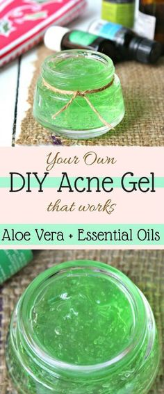 Aloe Vera and Essential Oils DIY Acne Gel - 14 Proven Homemade Acne Remedies That Cure Acne Fast and On A Budget