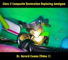 Class II Composite Restoration Replacing Amalgam - Dr. Gerard Cuomo (Video 1) | Odonto-TV
