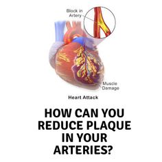 How can you reduce plaque in your arteries?