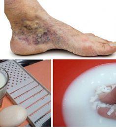 lehetséges-e műtétet elvégezni a visszér ellen kenőcs a visszéren a lábakon fotó