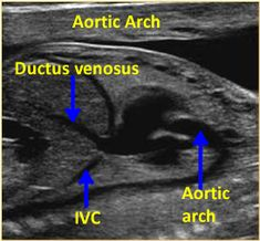 Ultrasound Humor, Ultrasound School, Ultrasound Sonography, Ultrasound Technician, Ultrasound Pictures, Ventricular Septal Defect, Congenital Heart Defect, Science Biology, Cardio