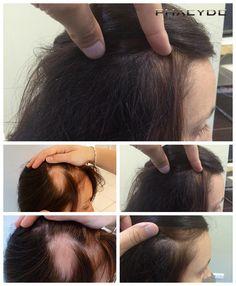 Kvindelige hårtab & Løsningen- PHAEYDE Klinik Reka havde en stærk balding stedet, på højre side af hovedet. Hendes donor zone var en ganske enorm, så udvinding del ikke var et stort problem, men implantation var. Huden var ikke godt i stedet. Det er det. Resultatet af hendes hår transplantation. Hun er glad. Transplant fra PHAEYDE Klinik.  http://dk.phaeyde.com/har-implantation