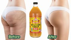 Celulite Remedies, Apple Cider Vinegar Health, Combattre La Cellulite, Peau D'orange, Lower Belly Workout, Human Body Anatomy, Body Fluid, Natural Home Remedies, Medical Conditions