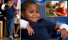 Zion Harvey who lost limbs to gangrene gets double-hand transplant | Daily Mail Online