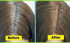 You Won't Believe How This Woman Uses a Cup of Potato Skins To Get Rid of Gray Hair On Early Ages - FoxHealthy - Health,Beauty,Lifestyle Covering Gray Hair, Going Gray, Organic Coconut Oil, White Hair, Black Hair, Natural Treatments, Grow Hair, Fall Hair, Hair Growth