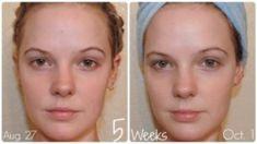 - Cómo cambiar tu apariencia: 7 simples pasos # cambio # Parece que el Cuidado Facial cambia de apar - Anti Aging Skin Care, Natural Skin Care, Skin Growths, Wash Your Face, Facial Care, Flawless Skin, Best Face Products, Clear Skin, Wellness