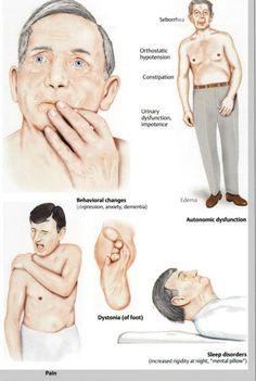 parkinson disease: clinical features