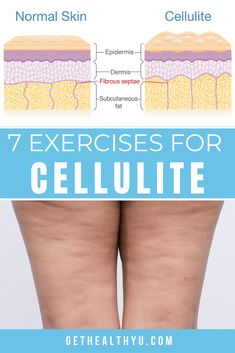 Do you have unwanted cellulite? Try these 7 exercises to reduce cellulite. Thigh Cellulite, What Is Cellulite, Cellulite Exercises, Cellulite Cream, Anti Cellulite, How To Reduce Cellulite, Workout Exercises, Workout Routines, Workout Ideas